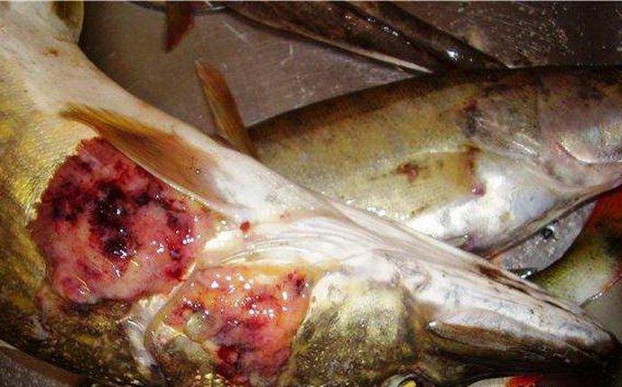 паразиты от рыбы у человека чем лечить