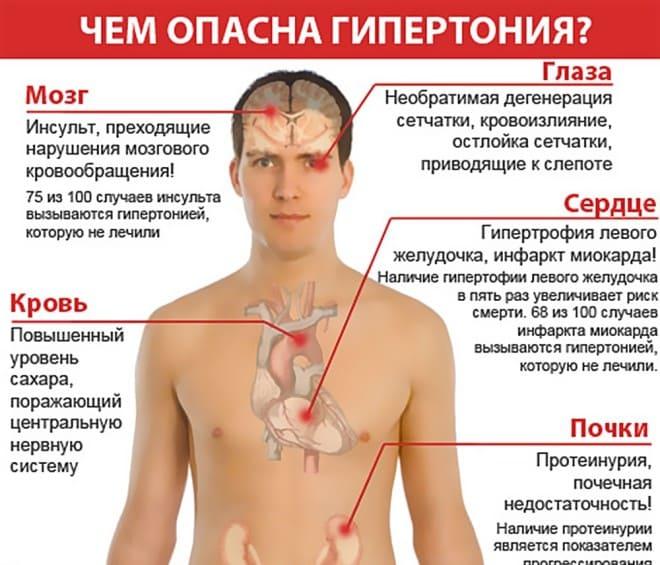 артериальная гипертензия армия